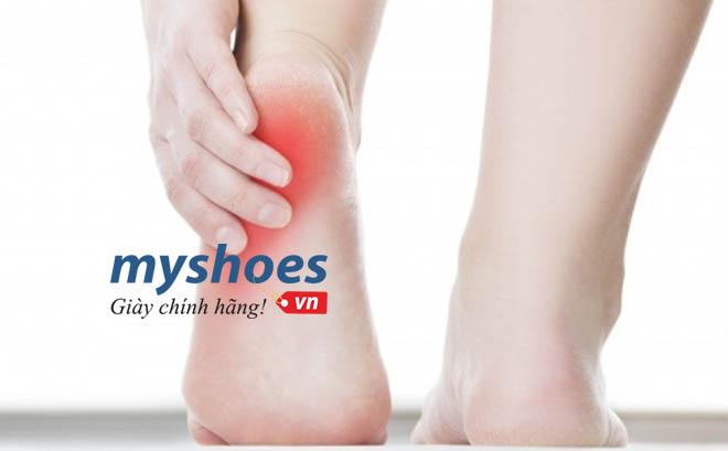 7 chấn thương khi chạy bộ  thường gặp bạn nên biết